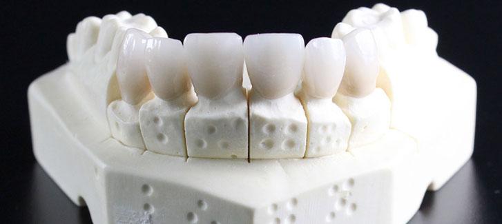 Zahnärztin Zahnersatz